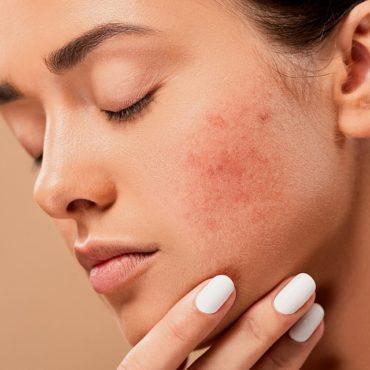 acne-5561750_960_720